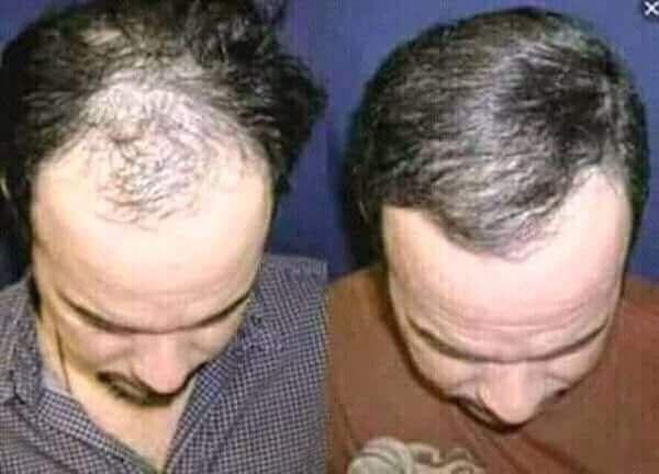 مجموعة تساقط الشعر من فوريفر المجموعة بتتكون من 1 جل الألوفيرا وهذا بيغذي الشعر وبيعطيله حيوية و لمعان وبيعالج جفافه وتق Forever Living Products Forever