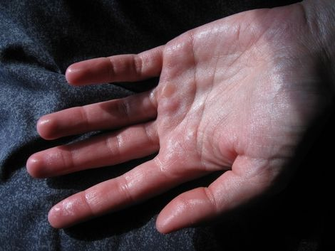 Natural Remedies for Sweaty Palms « I Told You I Was Sick