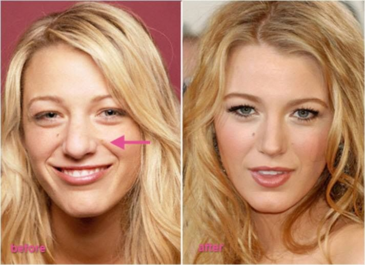 Most requested celebrity nose job