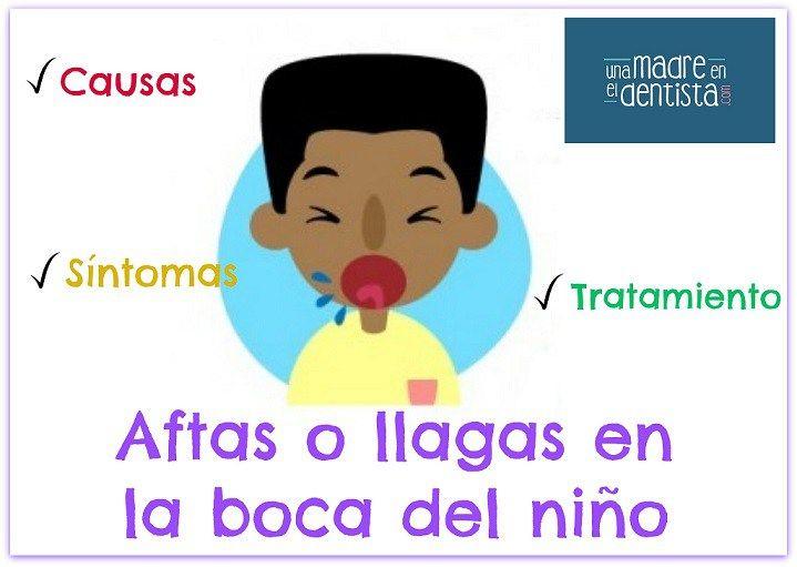 #Aftas o #llagas en la boca del niño: ¿por qué salen? ¿cómo tratarlas? Conoce todo sobre ellas  #salud http://blgs.co/sI05v0