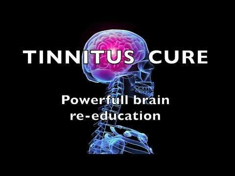 AMAZING BRAIN TINNITUS CURE - -- Re-Education Tones