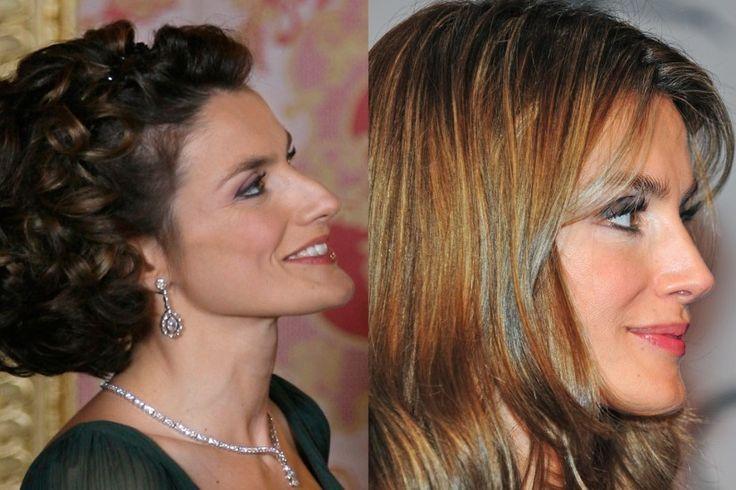 Comparativa del perfil de la princesa Letizia Ortiz antes (i) y después (d) de suavizarse en el quirófano la nariz y el mentón.