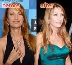 Actress Jane Seymour underwent a breast reduction surgery after she received an invitation to work in 2005 movie Wedding Crashes.