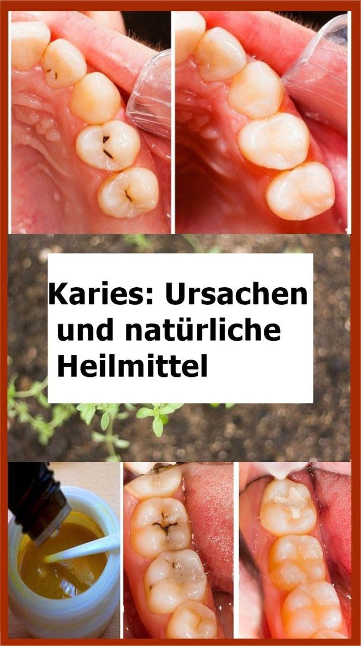 Karies: Ursachen und natürliche Heilmittel   isfurano!