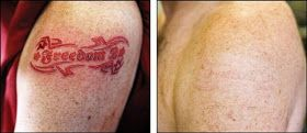 Natural Tattoo Removal: Why People Tend To Go For Natural Tattoo Removal Methods?