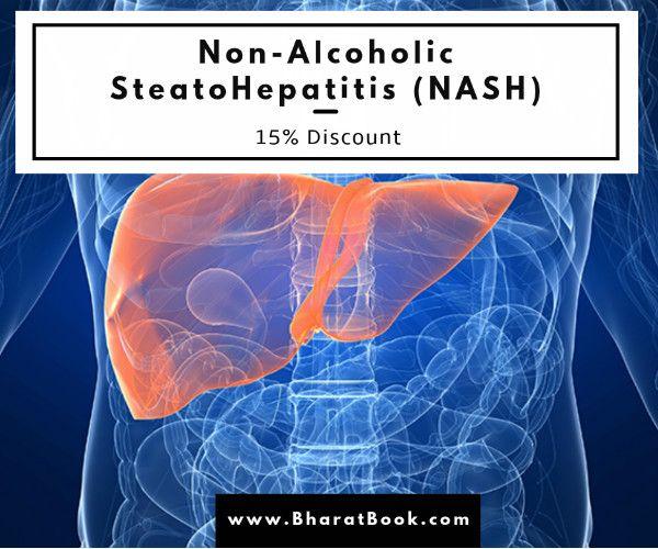 15% Discount on #NonAlcoholic #SteatoHepatitis (NASH) Valid Upto 13 Jan 2017