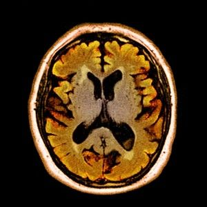 Alcohol abuse can lead to alcohol dementia.