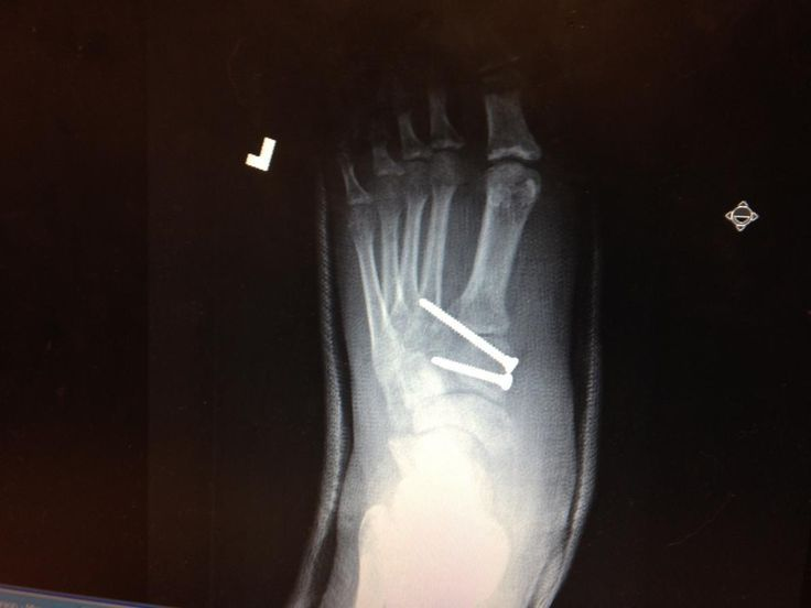 Keys To Diagnosing And Treating Lisfranc Injuries. Without a relatively quick diagnosis, #Lisfranc injuries can lead to compromised vascular supply or persistent instability