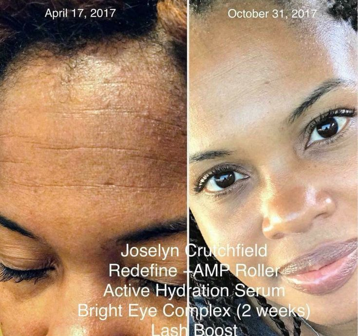 Ready to say goodbye to wrinkles? Redefine and AMP MD Roller results. AMP MD Roller is a derma roller that penetrates the skin to allow your skincare products to be absorbed deeper into the skin layers. Redefine 4-step regimen helps reduce the appearance of wrinkles and fine lines. Click now to order and save on this bundle! | Rodan + Fields skincare products | Skincare makeover | Remove Wrinkles | Anti-aging skincare |