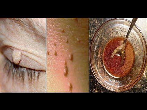 Destruye a tus lunares, verrugas, espinillas, etiquetas de la piel y manchas de edad completamente - YouTube