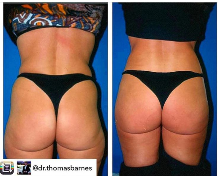 Repost from @dr.thomasbarnes  My Brazilian Butt Lift procedure by fat transfer with PRP growth factors - can really make a difference to lift, enhance and rejuvenate buttocks curves long term. I also did Ticklelipo of love handles, hips and outer thigh Lipo-contouring and used the harvested fat to recontour and reshape her buttocks awake in under an hour.