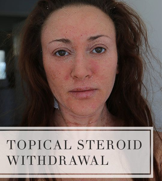 An overview of Topical Steroid Withdrawal (TSW), common side effects, estimated recovery time and TSW photos.