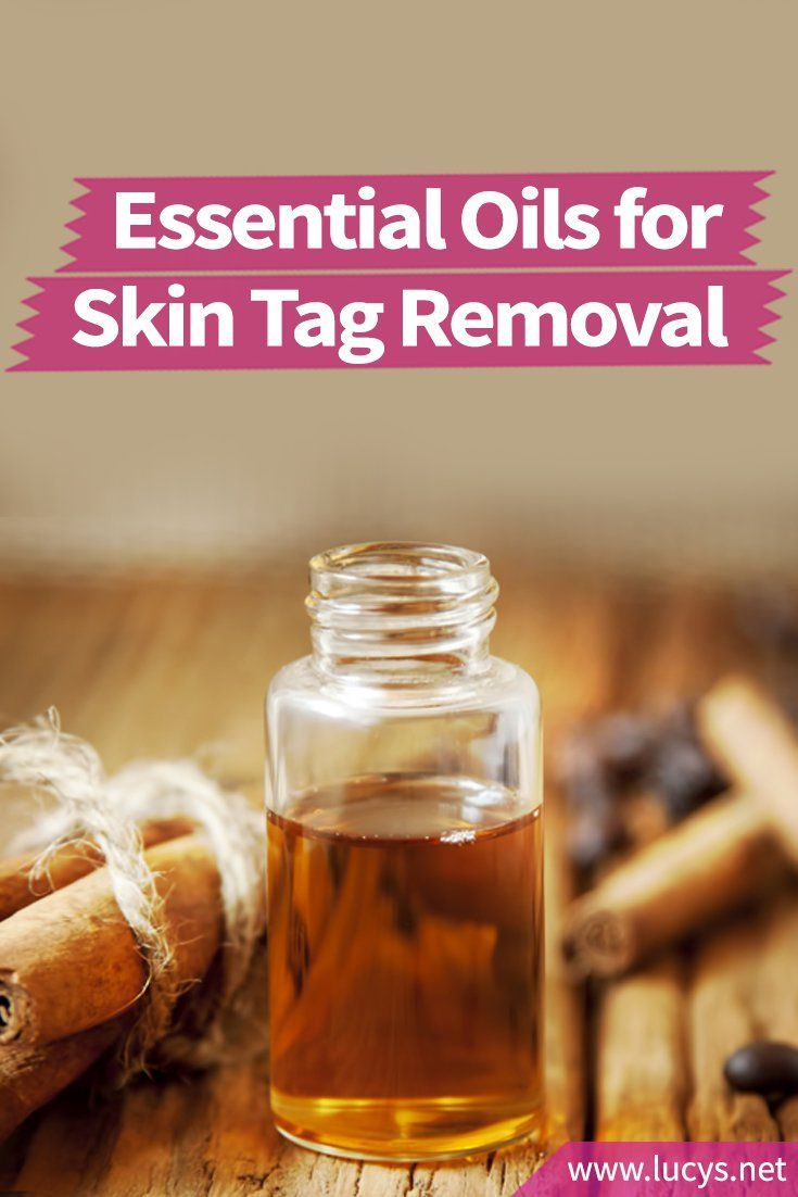 Essential Oils for Skin Tag Removal