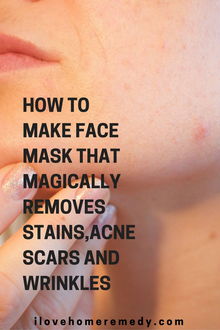 Some recovery treatments of acne and also acne on the face can often leave traces through dark spots and also marks. For that reason, you need another method to address these additional skin issues. We provide you a mask that is a genuine salvation in such cases!