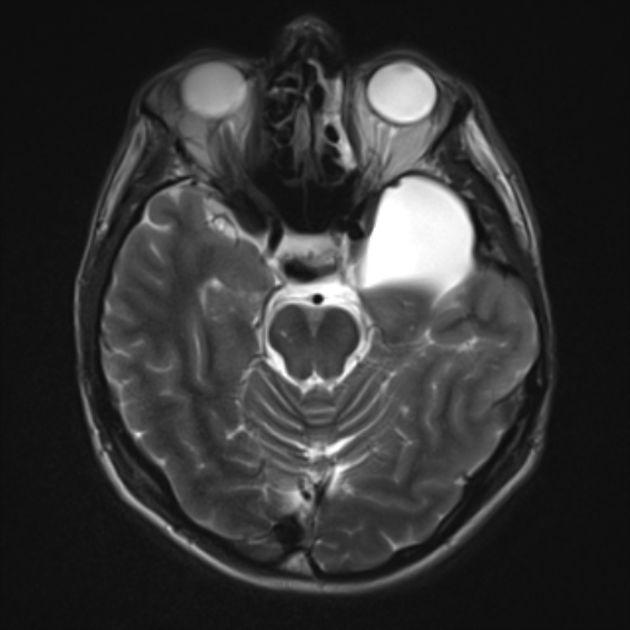 30 best images about arachnoid cyst, posterior fossa arachnoid, Skeleton