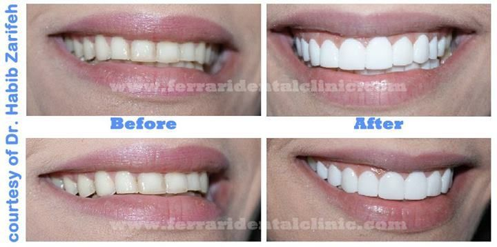 Hollywood Smile Cost In Lebanon By Elite Dentists