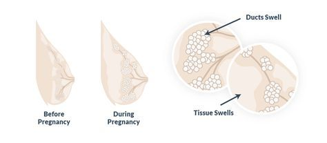 Very early sign of pregnancy, tender breasts #pregnancysigns,