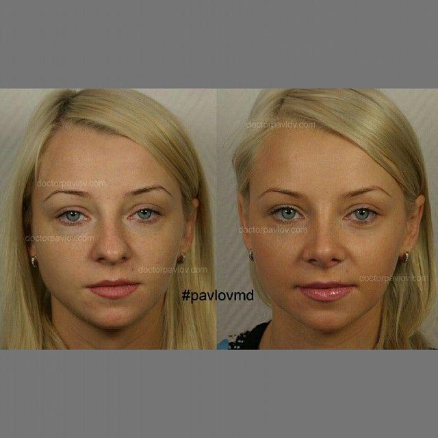 Ринопластика. Коррекция бульбообразного кончика носа. 1 год от момента операции.  Фото опубликовано с любезного разрешения пациентки.  #докторпавлов #красиво #краснодар #ставрополь #спб #секси #увеличениегуб #увеличениегруди #косметолог #клиника #пластиканоса #ринопластика #красота #уходзасобой #cute #beautiful #beauty #face #nose #pretty #lifestyle #plasticsurgery