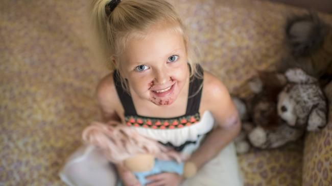 EB is a horrendous and painful disease.  Learn how you can help in this article of beautiful Tilly.  https://www.cazinc.com.au/home/2017/4/30/who-is-the-little-girl-who-lives-in-pain-and-still-smiles