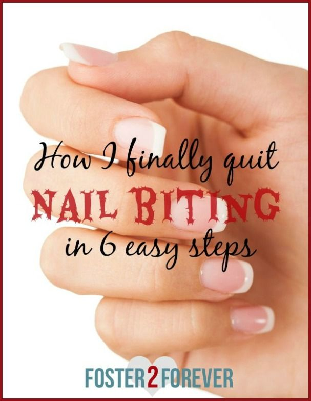 I didn't realize that kicking a lifelong bad habit could really happen! Check out these nail biting remedies!