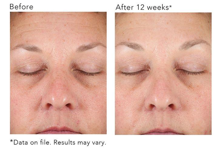 Revision's DEJ Face Cream produces results | Face cream