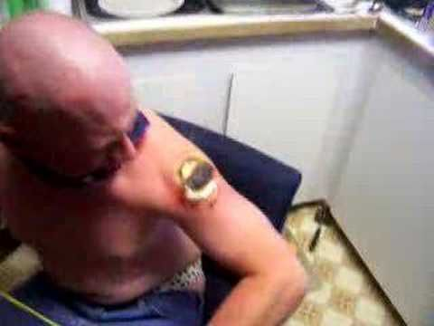 Redneck tattoo removal humor pinterest for Tattoo removal in louisiana