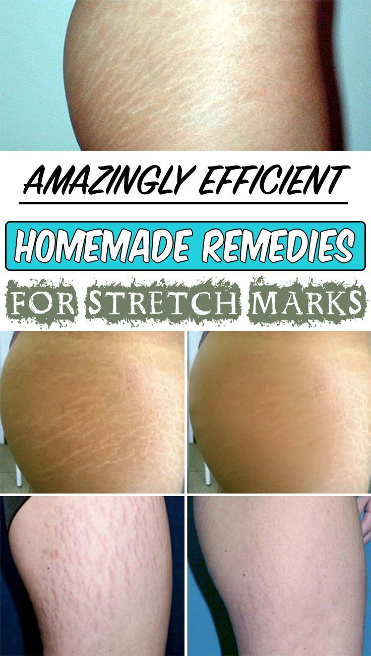 Amazingly efficient homemade remedies for stretch marks