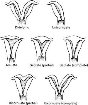 Uterus anomalies  Oh my unicorn stupid uterus I hate you so much  -me
