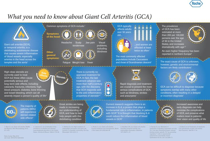 Giant cell arteritis (GCA) is a debilitating autoimmune disease that causes severe inflammation of the blood vessels.