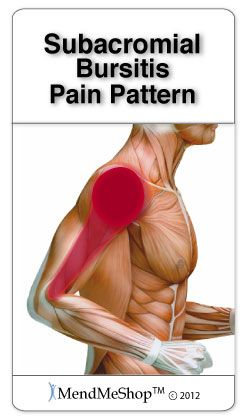 Subacromial Bursitis pain pattern. Yes, please, mend me!