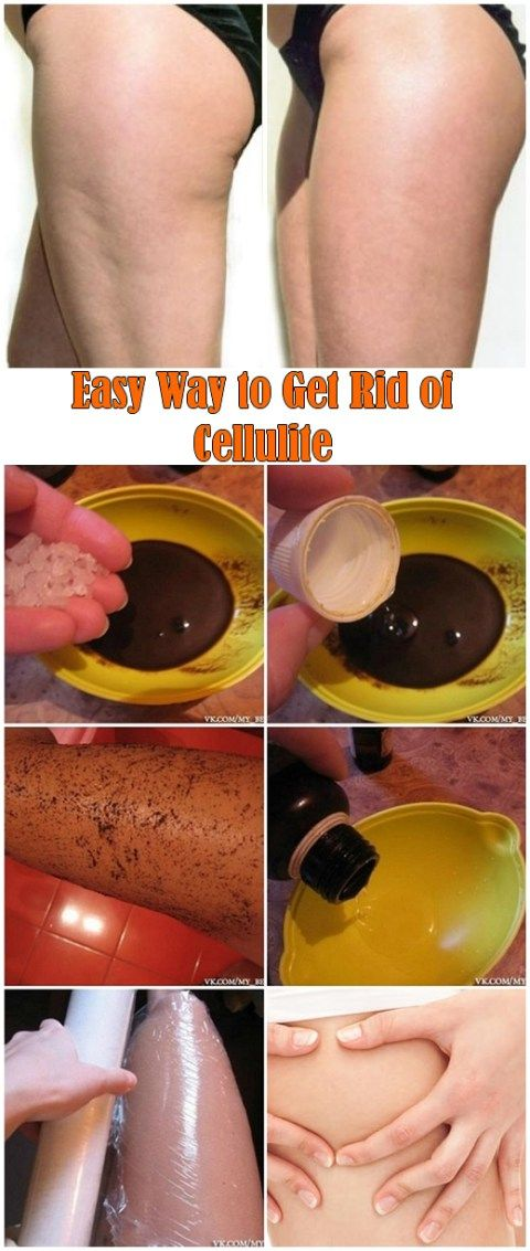 Easy Way to Get Rid of Cellulite : – Coffee (it is a powerful antioxidant and stimulates circulation); – Epsom salt; – Anti-cellulite oil (try to find a decent brand with less chemicals) or coconut oil; – Plastic wraps....