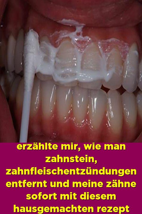 Ein befreundeter zahnarzt erzählte mir wie man zahnstein zahnfleischentzündungen entfernt und meine
