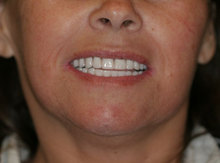 dr golpa dental implants 58 best Golpa G4-Implant Solution | May-June Patients of the Week ...
