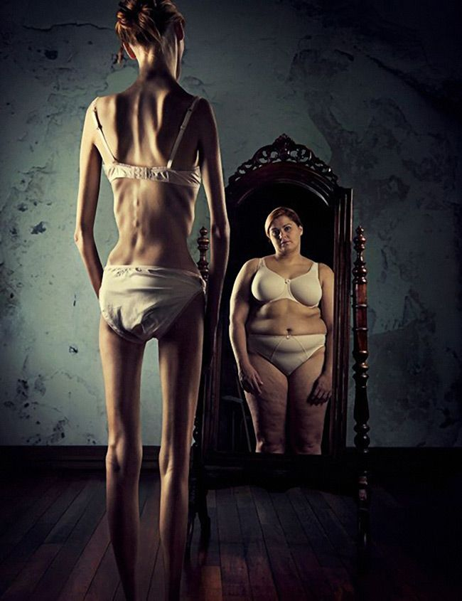 """Eating Disorder"" - Ross Brown photography #surrealism #anorexia #dismorphic"