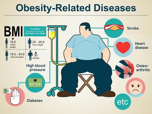 When Obesity Meets Diabetes