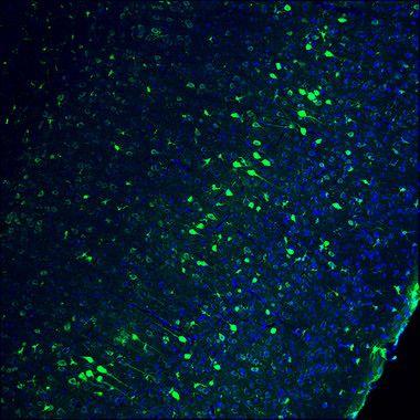 La edición genética restaura la visión en ratones ciegos