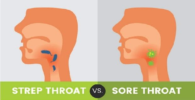 16 SOOTHING STREP THROAT HOME REMEDIES