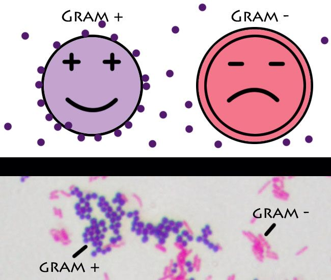 Streptococcus pneumonia is Gram Stain positive ...