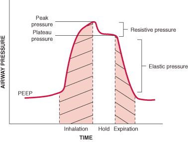 Overview of Mechanical Ventilation - PEEP = positive end-expiratory pressure. Bi-PAP can be used for chronic ventilation in patients w/ neuromuscular or chest wall diseases. Ventilator settings: Too high a setting causes weak patients to be unable to trigger a breath. Too low a setting may lead to over ventilation by causing the machine to auto-cycle. merckmanuals.com