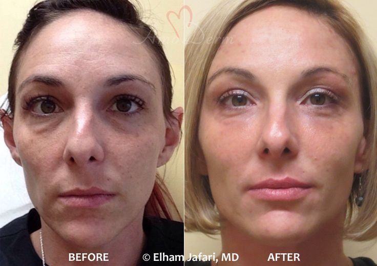 Advanced facial sculpting with botox