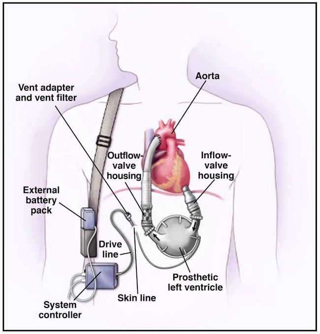 the advancements in the use of artificial heart devices New pressure-controlled sheath keeps pig hearts beating at full force  this  version uses an array of actuators that function as artificial muscles.