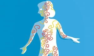 Deadly infection … sepsis causes organ dysfunction.