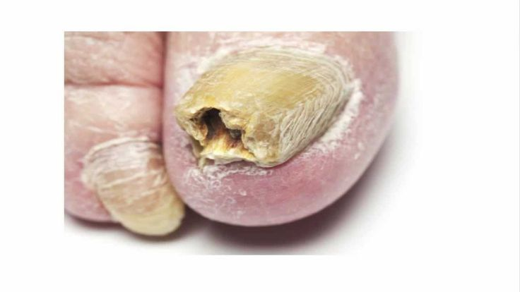 Acquiring the very best treatment for toenail fungus can demonstrate to be very a obstacle for anyone who suffers from this issue.