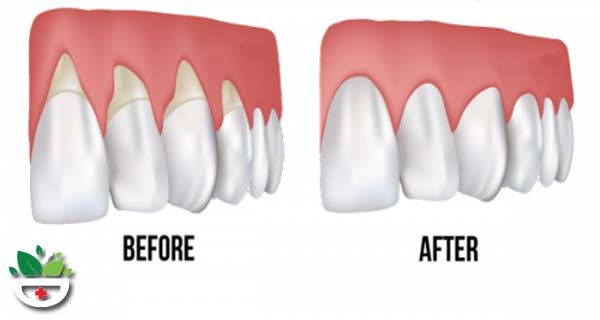 how to build back gum tissue
