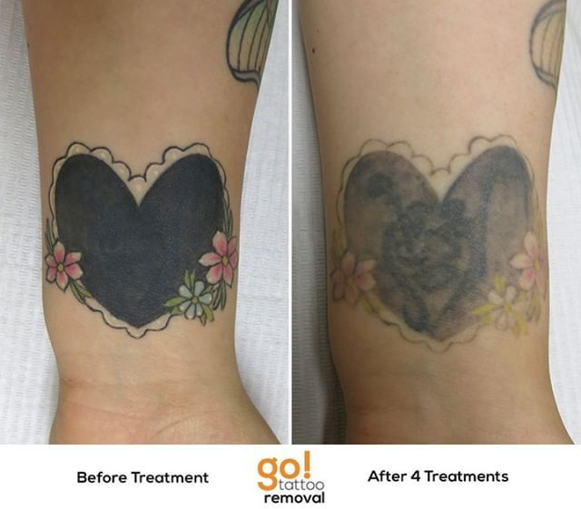 Peeling The Layers Of Pigment From This Cover Up Using The Medlite C6 On The Black And Picosure On Color Picosure Tattoo Removal Laser Tattoo Original Tattoos