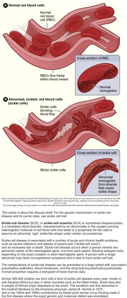red blood cell and e g sickle cell Sickle cell disease (scd) is a serious group of conditions which are inherited (genetic) it affects the red blood cells in the blood sickle cell anaemia is the name.