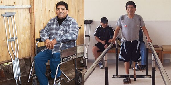 Julio's diabetes cost him his leg. He finally received an orthopedic pylon, a temporary solution to help him walk again and restore his balance for a permanent prosthetic leg. As Julio awaits the necessary funds for a prosthetic leg, he looks forward to the prospect of transitioning to a more mobile, happier and healthier life.