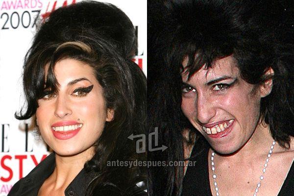 Amy Winehouse y sus nuevos dientes, antes y despues ...