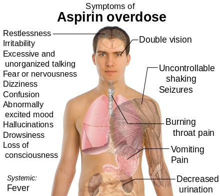 Aspirin poisoning - Wikipedia, the free encyclopedia