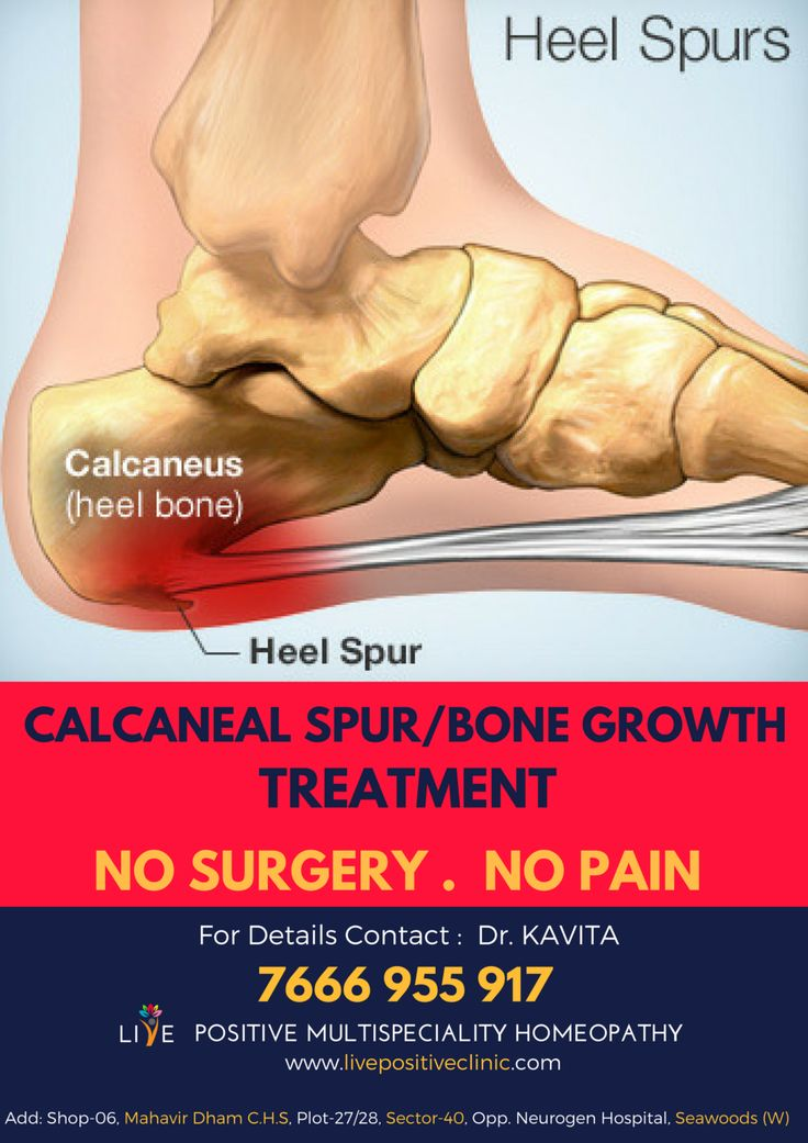 """homeopathic treatment calcaneal spur"""